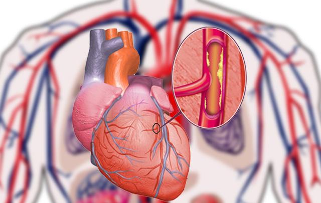 Porque el viagra produce infartos