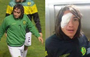 El delantero sufrió úlcera de córnea en su ojo derecho.