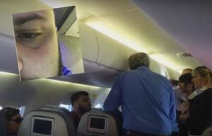 El periodista Ignacio Otero mostró el ataque que sufrió en un avión.
