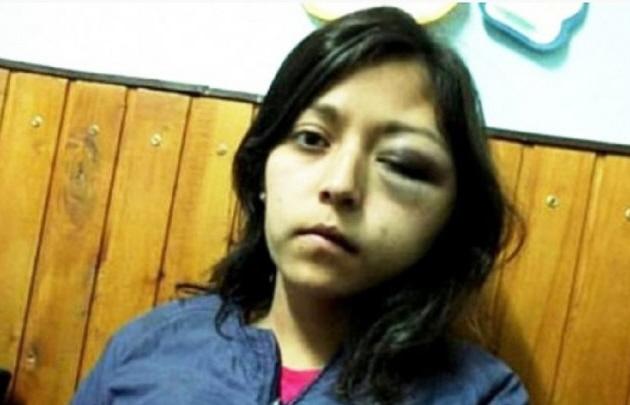 Mariana Arabena fue brutalmente golpeada.