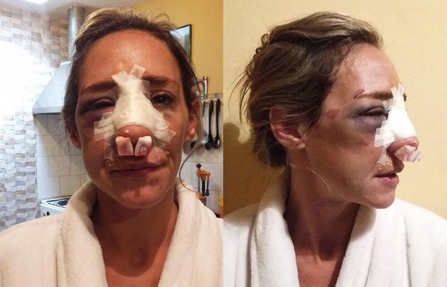 Paola Mascambruni, golpeada por su ex pareja