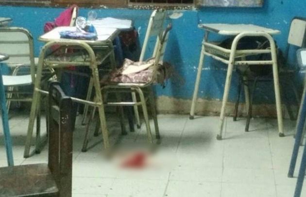 El disparo impactó en uno de los pómulos de su compañera, que ahora está internada.