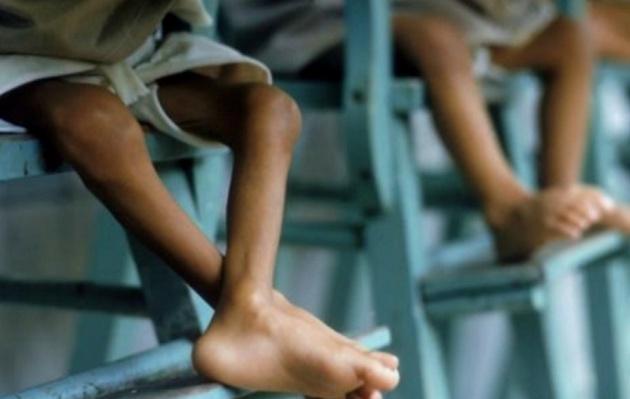 La desnutrición infantil es la única que se puede prevenir (Foto: Archivo)