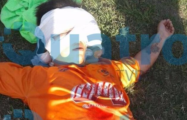 Agustín Chiara sufrió una golpiza en un partido de fútbol.
