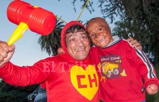 Tinelli conoció a Maxi, el niño con múltiples quemaduras