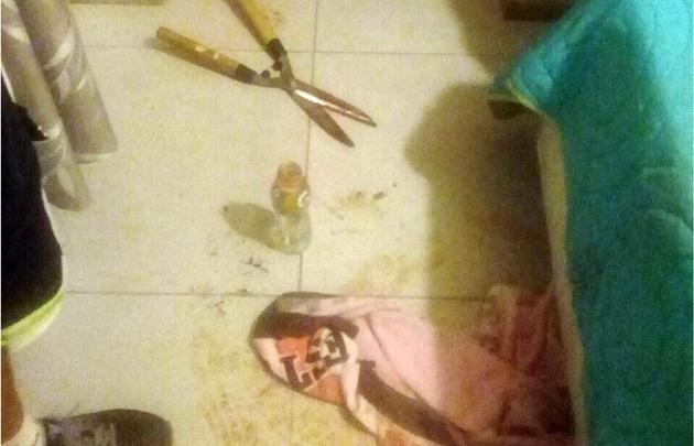 Las últimas fotos truculentas fueron las del caso del hombre mutilado.