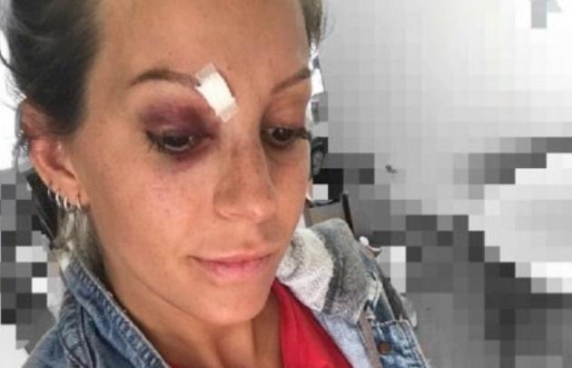 El grave accidente en plena función de Noelia Marzol.