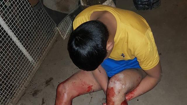 FOTO: Ingresó a robar y un pitbull le destrozó la pierna