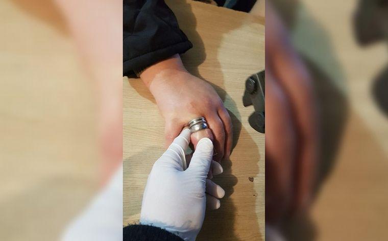 La historia de la mujer que se le trabó un anillo y tuvo que llamar a los bomberos para que la salven