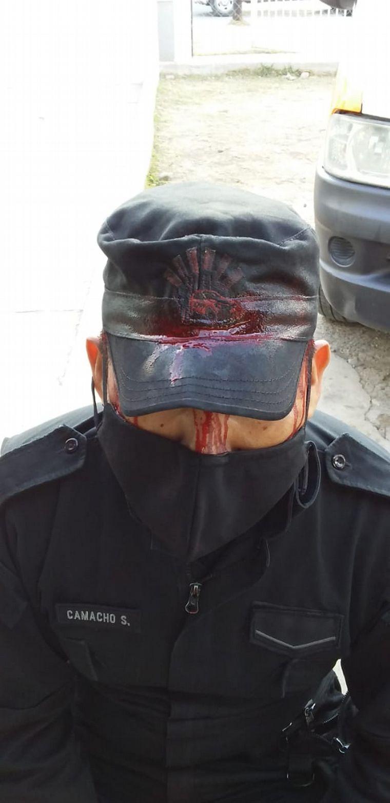 AUDIO: Tres policías fueron brutalmente golpeados en Salta