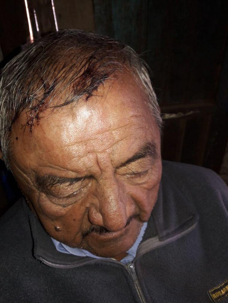 AUDIO: Asaltaron y atacaron a otro jubilado, esta vez, en Rosario