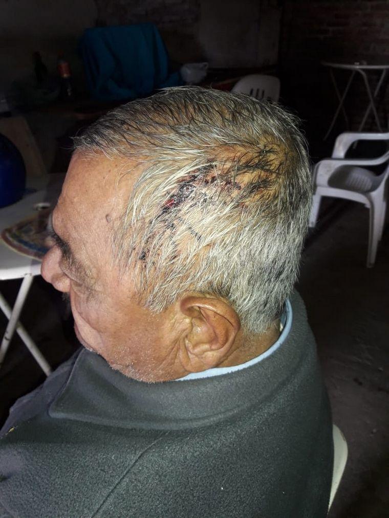 FOTO: Lo atacaron con palos, fierros y un cuchillo.