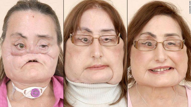 FOTO: A los 57 años murió la mujer que recibió el mayor trasplante facial.