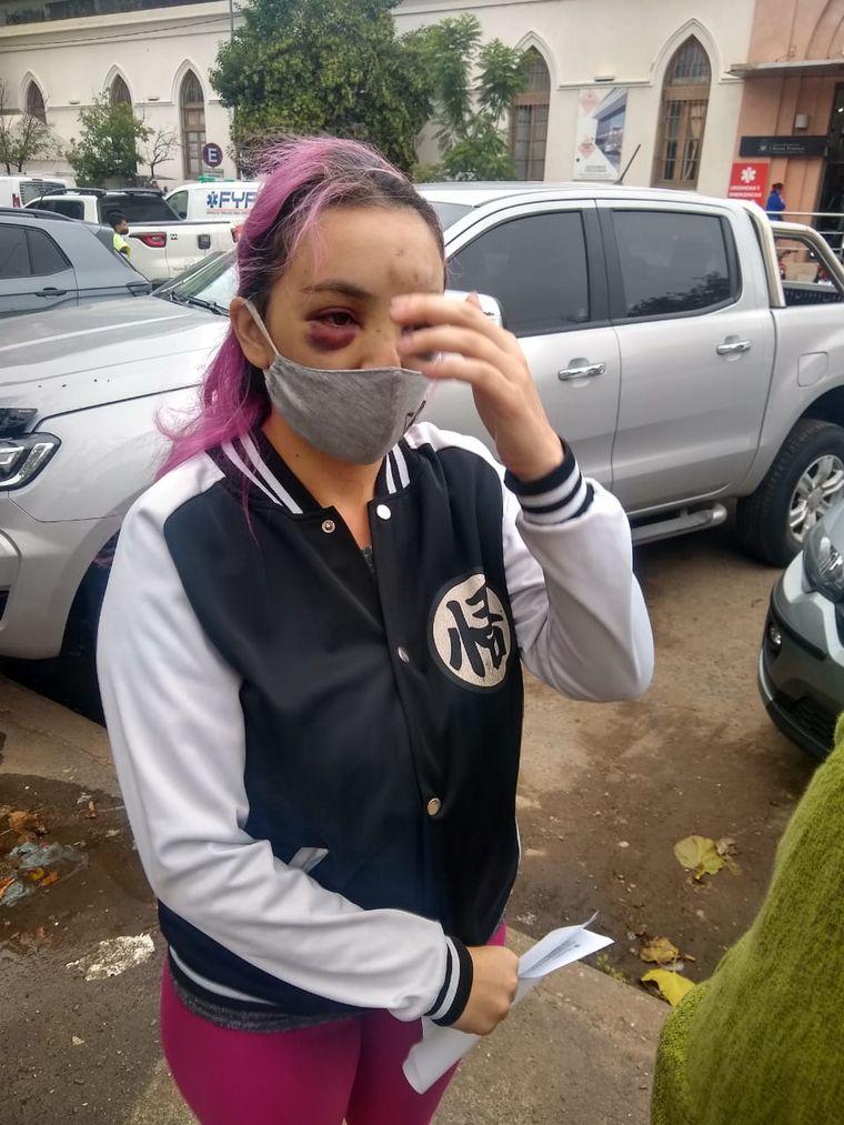 AUDIO: Intento de secuestro: fue abordada desde un vehículo y sufrió numerosos golpes
