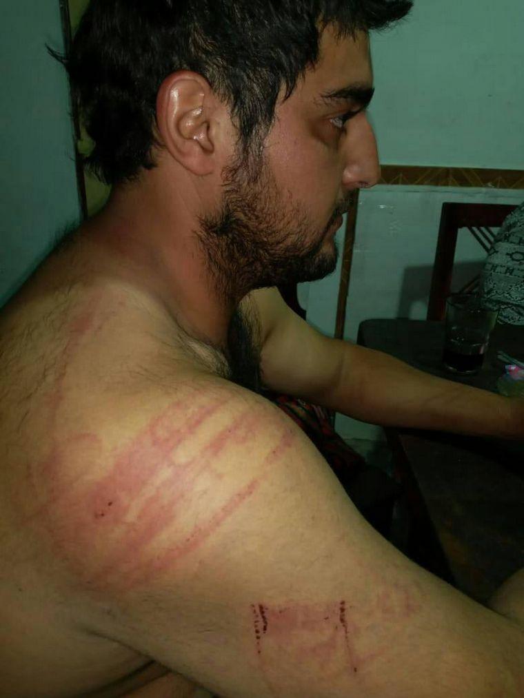 FOTO: Brutal paliza de usurpadores a dueños de un campo