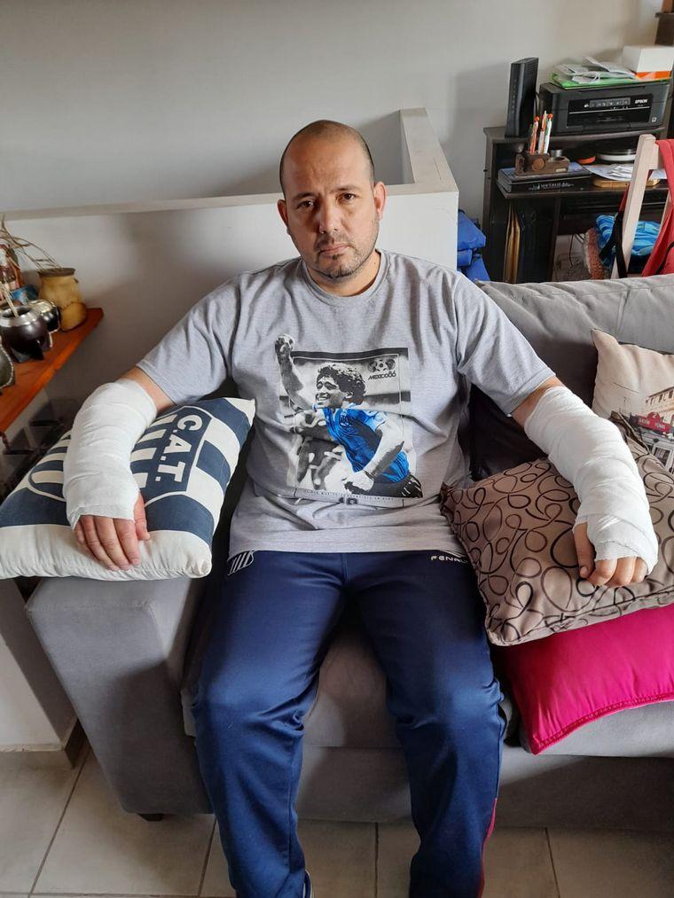 FOTO: El pitbull le provocó heridas en ambos brazos.